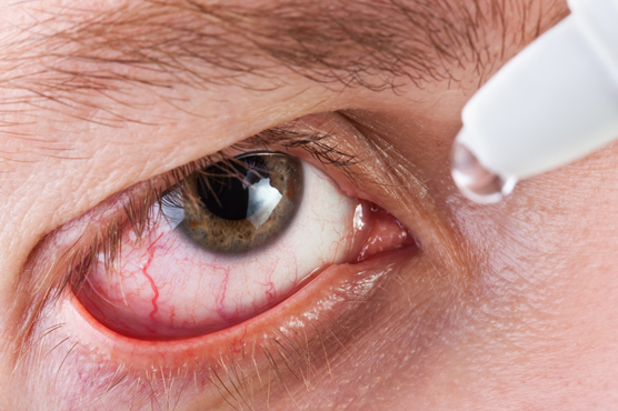 Dry Eye Treatement